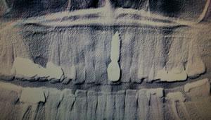 Ein Implantat ist präzise in den Knochen gesetzt worden und hält die grazilen Alveolenränder am Implantat