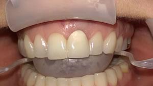 Das Implantat erhält sofort eine Krone als Provisorium für die viermonatige Einheilung.